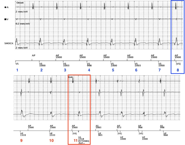 Pre-syncope In An ICD Patient: An Unexpected Aetiology